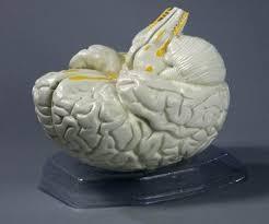 Головний мозок людини з артеріями